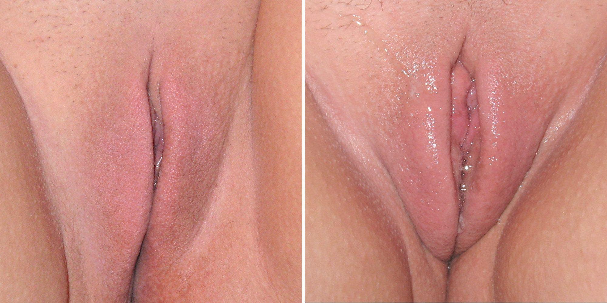 Cupcake reccomend Female genitals clit orgasm