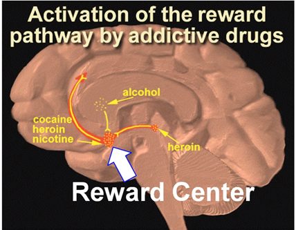 Scratch reccomend Disorder continuous orgasm brain