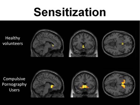 Disorder continuous orgasm brain